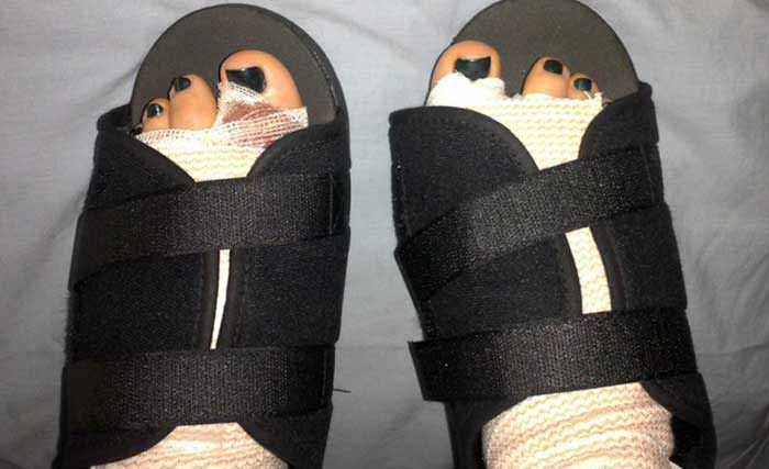 Best-Shoes-to-Wear-After-Foot-Surgery