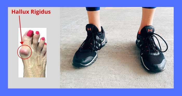 Best-Shoes_for-Hallux-Rigidus